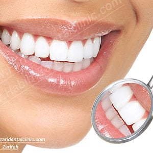 Profile picture for Teeth whitening Lebanon