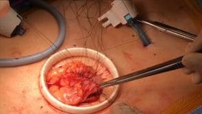 Laparoscopic Left Colectomy