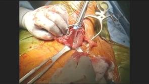 Laparoscopic Transhiatal Total Esophagectomy