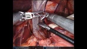 Robotic Hiatal Hernia Repair with Diaphragm Release