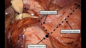 Laparoscopic Wedge Collis Gastroplasty