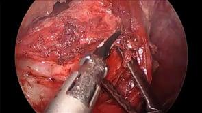 Laparoscopic Epiphrenic Esophageal Diverticulectomy