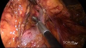 Laparoscopic Distal Pancreatectomy & Splenectomy