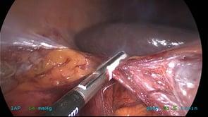 Laparoscopic Right Colectomy