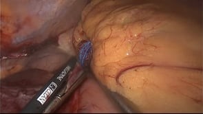 Laparoscopic Left Lateral Liver Resection