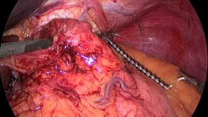 Laparoscopic Magnetic Lower Esophageal Augmentation (LINX)