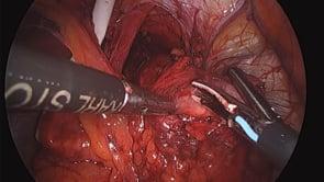 Laparoscopic Heller Myotomy with Toupet Fundoplication