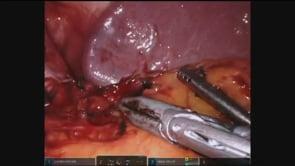 Robotic Splenectomy
