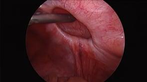 Laparoscopic Spigelian Hernia Repair