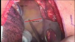 Open McKeown 3-Hole Total Esophagectomy