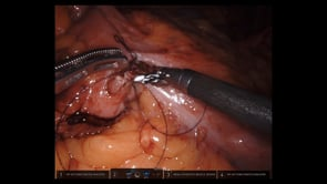 Robotic Right Colectomy