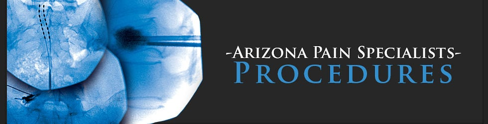 Arizona Pain Specialists- Procedures