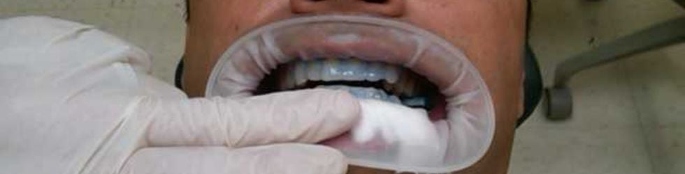 TheJoeO (everything dental)