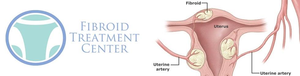 Fibroid Treatment Center