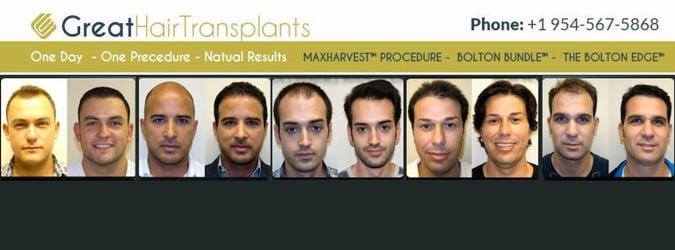 Great Hair Transplants