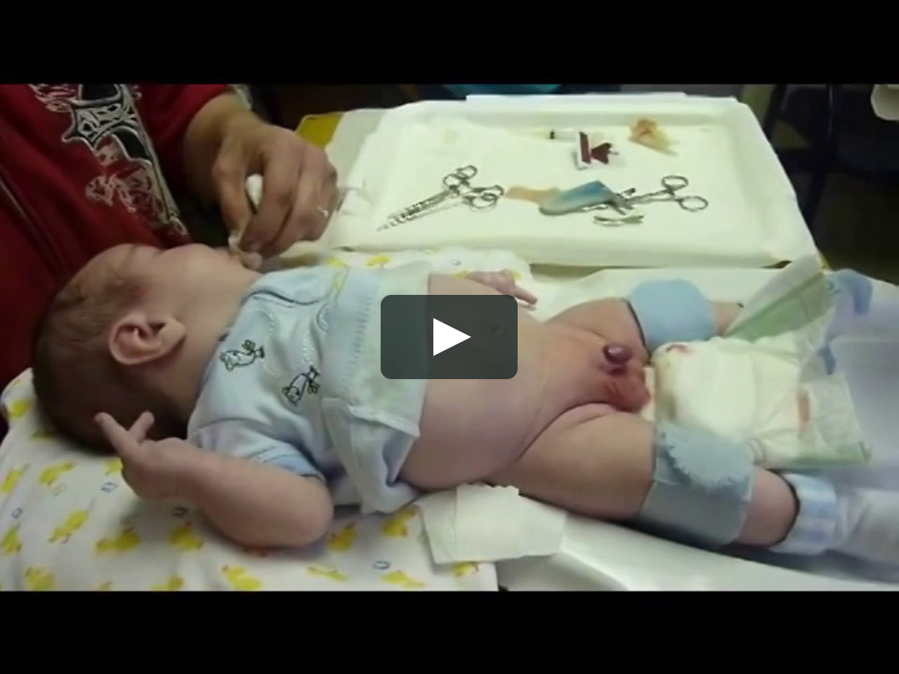 Painless Circumcision Using Anesthesia | Buenafe Clinic on ...
