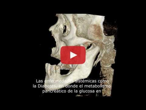VIDEO: PERDIDA OSEA DE LOS MAXILARES