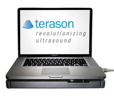 Terason Ultrasound Video