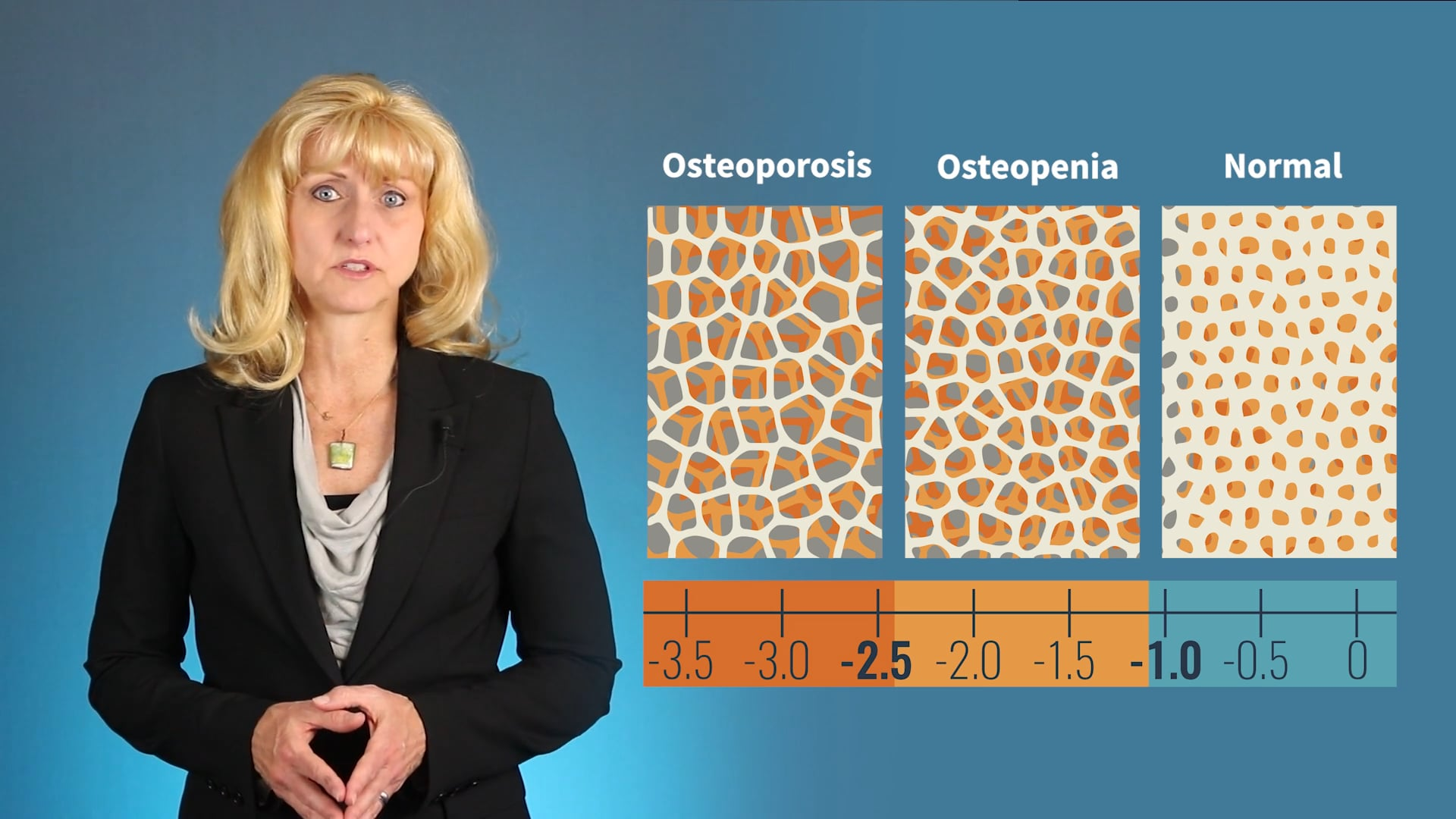 OsteoFit (Preview)