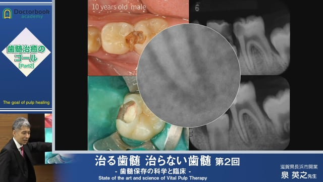 #2 う蝕により露髄した歯髄の治癒