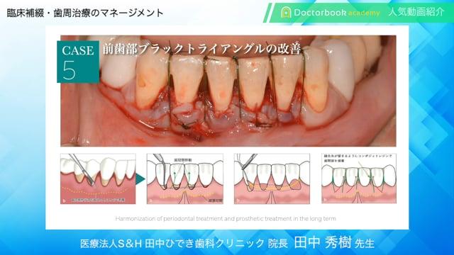 【Doctorbook academy 人気動画紹介】臨床補綴・歯周治療のマネージメント