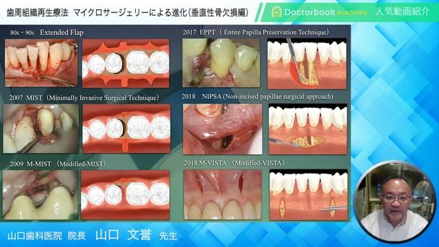【Doctorbook academy 人気動画紹介】歯周組織再生療法マイクロサージェリーによる進化(垂直性骨欠損編)