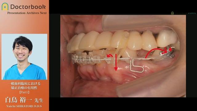 一般歯科臨床における矯正治療の有用性