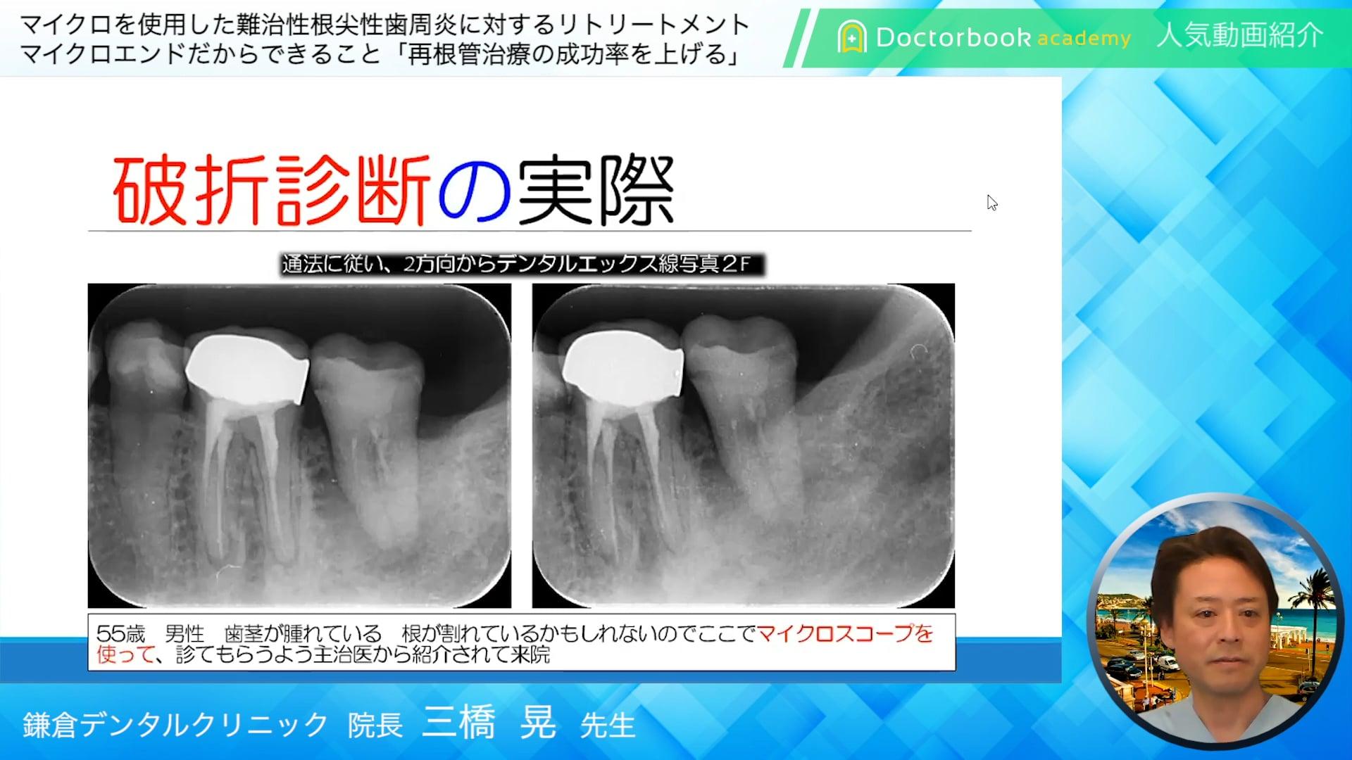 【Doctorbook academy 人気動画紹介】マイクロを使用した難治性根尖性歯周炎に対するリトリートメント