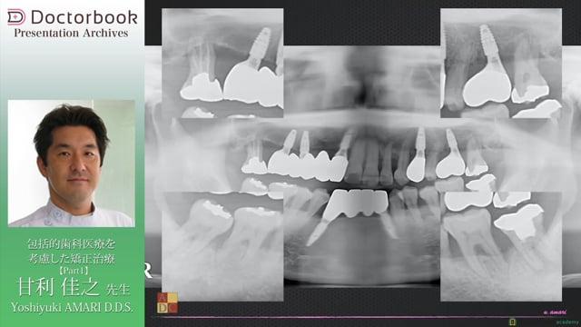 包括的歯科医療を考慮した矯正治療