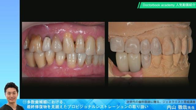 【Doctorbook academy 人気動画紹介】⑪多数歯補綴における、最終修復物を見据えたプロビジョナルレストレーションの取り扱い
