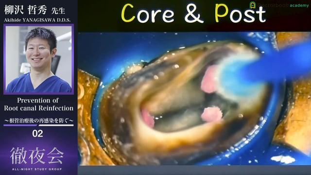 #2 Core & Post