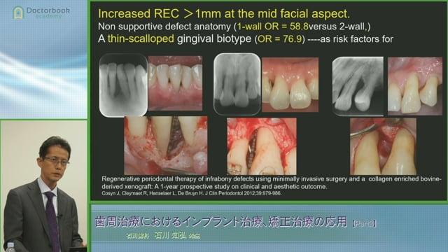 #3 抜歯か保存か