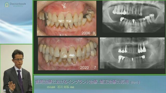 #1 歯周補綴回避