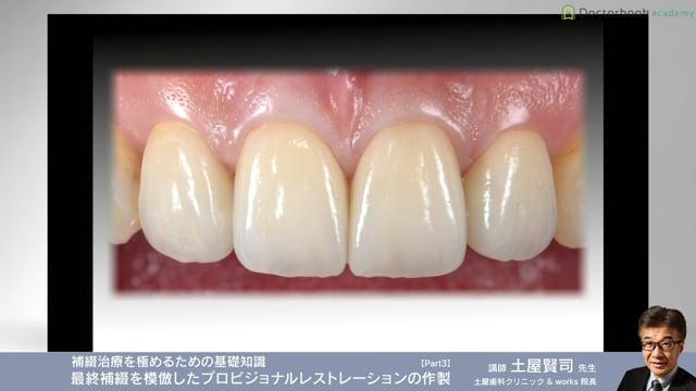 #3 歯肉の反応の評価  マージン、エンブレジャー、エマージェンス、プロファイル