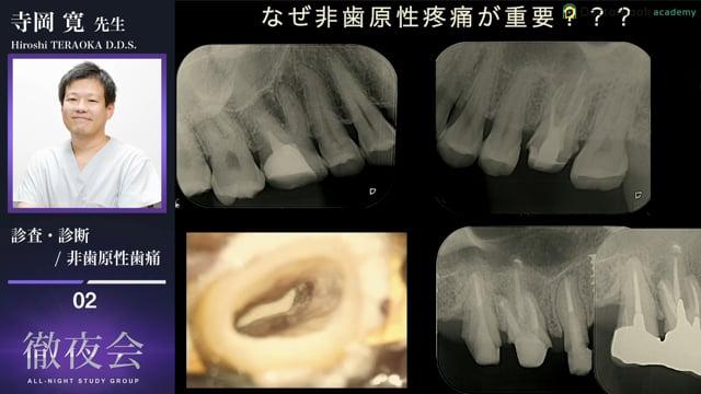 #2 非歯原性歯痛とは