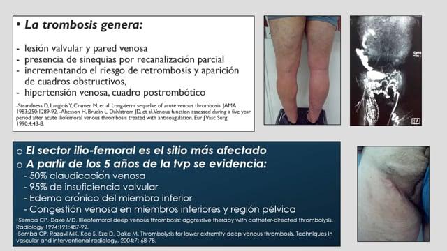 Manejo endovascular de la trombosis iliofemoral en adultos - Dr Oscar Gural