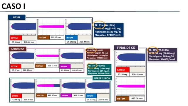 ROTEM/TEG en UTI correlación con parámetros de laboratorio clásicos - Dra Marina López