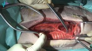 Tiroidectomía unilateral