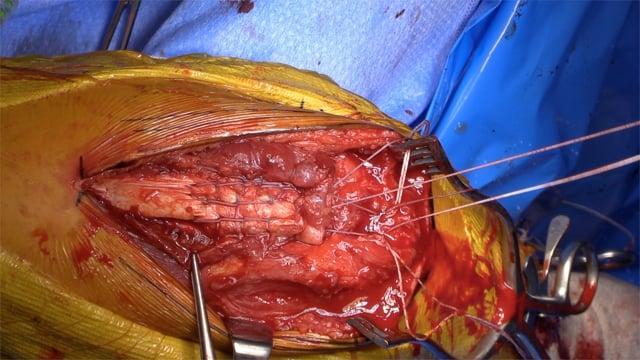 Distal Triceps Tendon Rupture Repair
