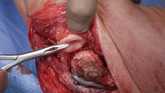 The Role of Capsular Release Following Distal Humerus Factures