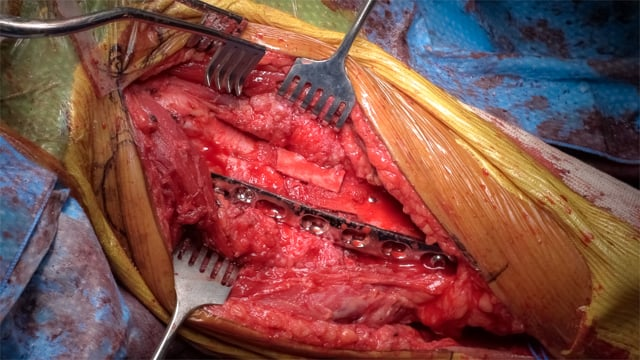 Repair of Humeral Shaft Nonunion with Plate and Screw Fixation and Iliac Crest Bone Graft