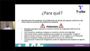 Criterios de malignidad en citología