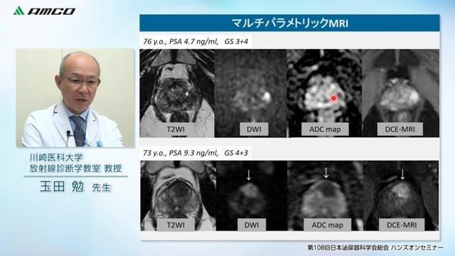 前立腺癌診療におけるガイド下前立腺標的生検のインパクト