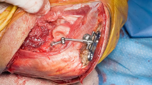 Treatment of a Chronic Elbow Dislocation with an Internal Fixator