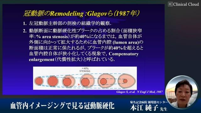 本江 純子:血管内イメージングで見る冠動脈硬化