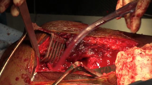Post-Traumatic Heterotopic Ossification of the Hip