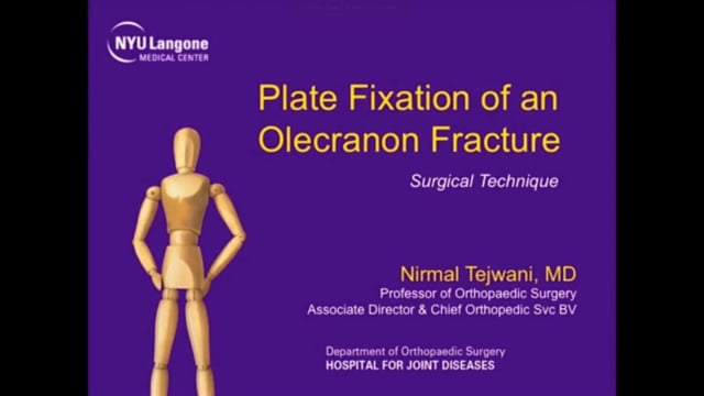 Plate Fixation of an Olecranon Fracture
