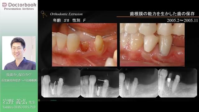 抜歯か、保存か? 重度歯周病患者への治療戦略