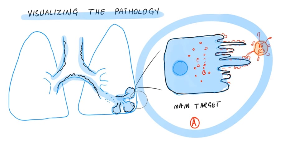 New Technique To Study COVID Pathology (High Parameter Imaging Mass Cytometry)