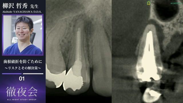 歯根破折を防ぐために 〜リスクとその解決策〜